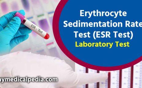 What is Erythrocyte Sedimentation Rate Test (ESR Test) Lab Test ?