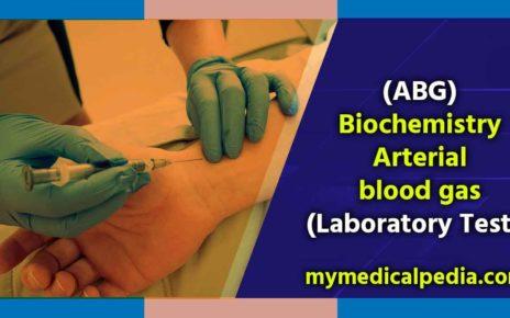 Arterial blood gas Test