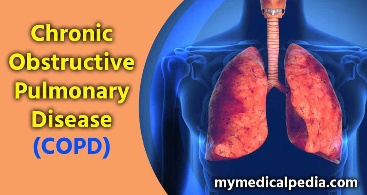 Chronic obstructive pulmonary disease (COPD) Causes, Symptoms , Diagnose and Treatment