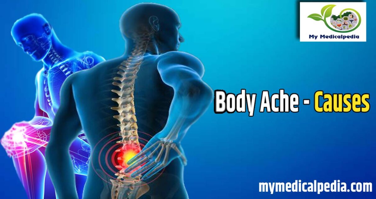 know the reason of Causes of Body Ache , best and right Prevention of Body Ache, Best Treatment of Body Ache