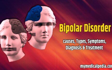Bipolar Disorder : Causes, Types, Symptoms, Diagnosis & Treatment